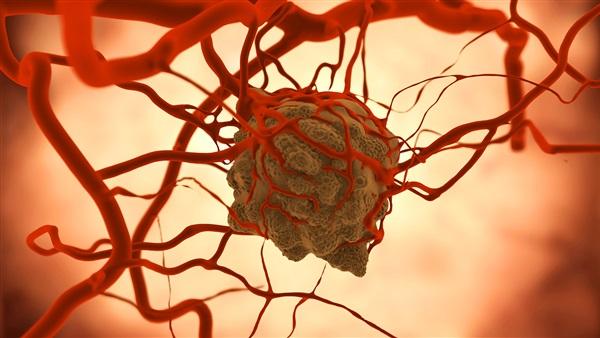 دراسة: اكتشاف خلايا الأوعية الدموية المسببة للالتهابات المزمنة بين البدناء