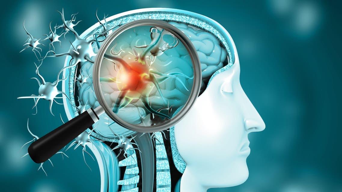 """دراسة: تلف الأوعية الدموية والالتهاب في أدمغة مرضى فيروس"""" كورونا"""""""