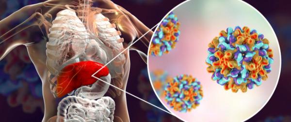 التهاب الكبد الفيروسي ب
